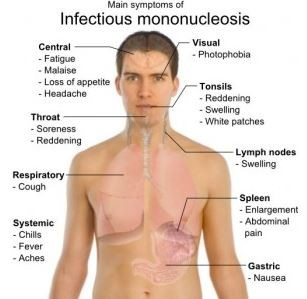 Mono Mononucleosis Lymph Nodes Fatigue Tired